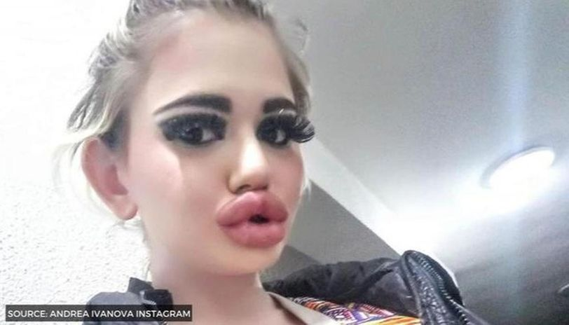 WORLD'S BIGGEST LIPS
