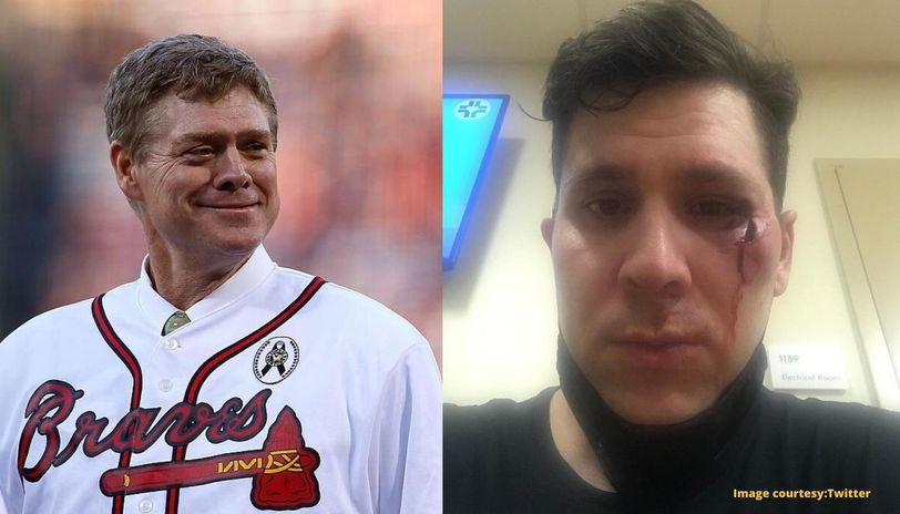 Mlb Legend Dale Murphy S Son Shot In Eye With Rubber Bullet At George Floyd Death Protest Republic World